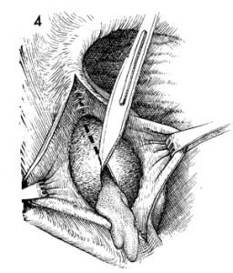 Bartholin Cyst drainage