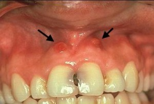 canker sores on gums