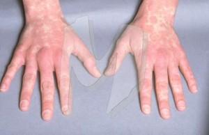 Glandular Fever Symptom