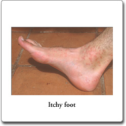 Itchy Foot pictures