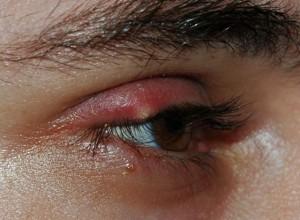 Swollen Eyelid pictures