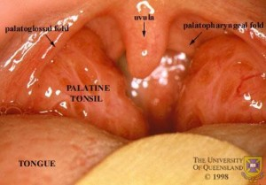 Swollen Tonsil pictures
