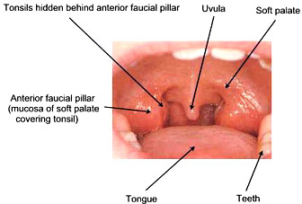 Swollen Tonsils – Symptoms, Causes, Pictures, Treatment and Home ...