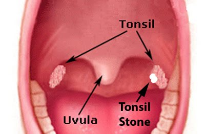 Tonsil Stones - Pictures, Symptoms, Causes, Prevention
