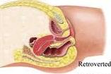 Image of Retroverted uterus