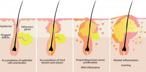 sebaceous gland pictures