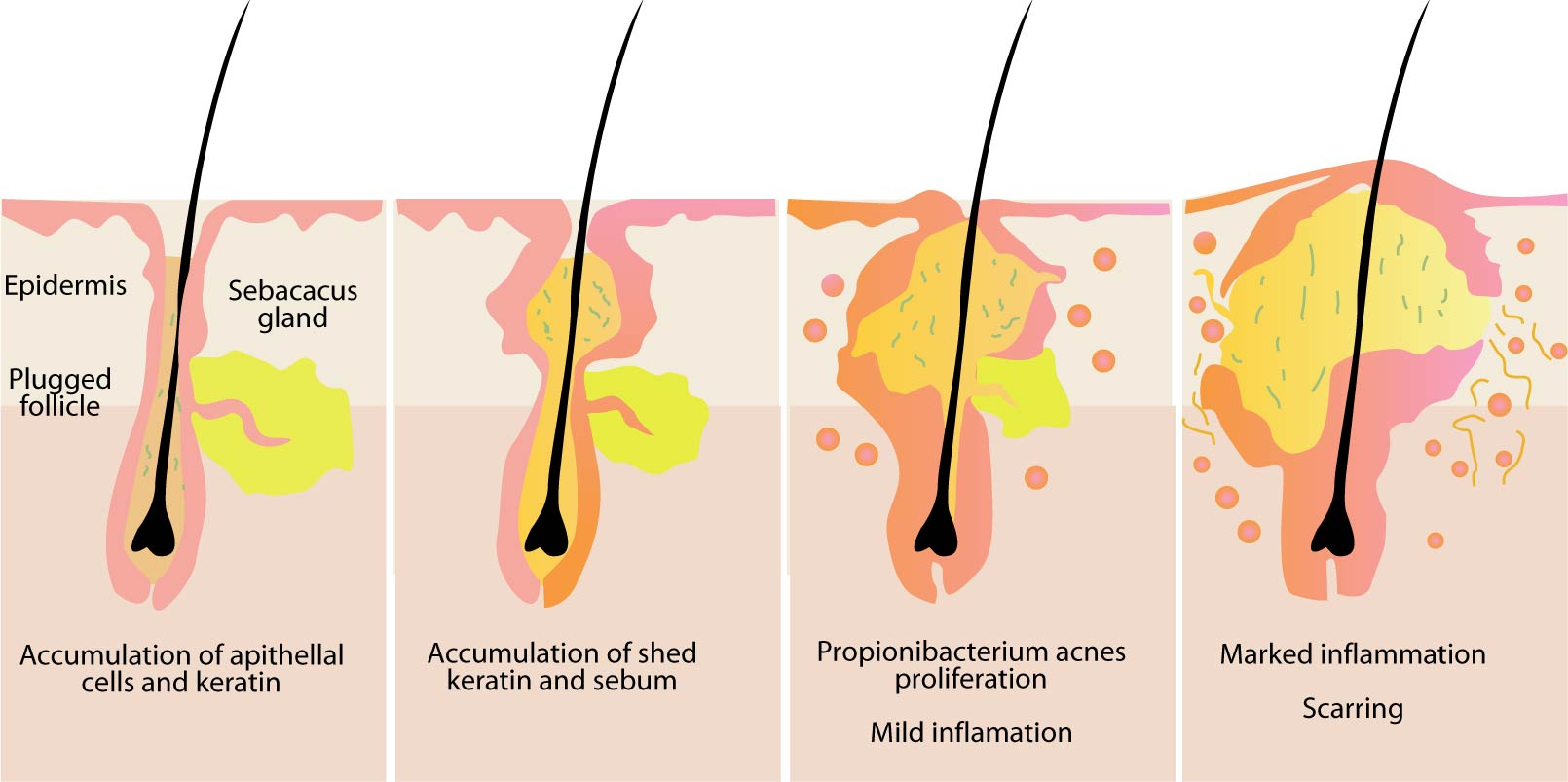 Sebaceous Glands Location Functions And Pictures
