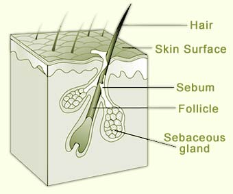 sebaceous-glands-pictures.jpg