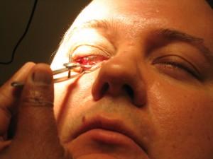 Chalazion Surgery