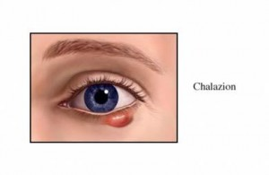 Photos of Chalazion