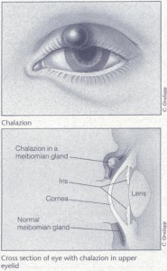 Pictures of Chalazion