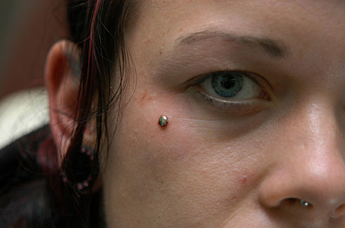 Dermal Anchor Piercing photos