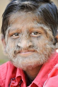 images of Hypertrichosis