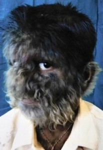 photos of Hypertrichosis