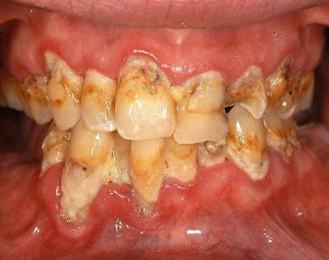 Meth Mouth pics