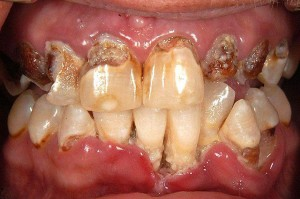 images of Meth Mouth