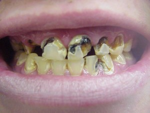 photos of Meth Mouth