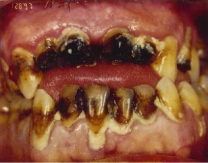 pictures of Meth Mouth