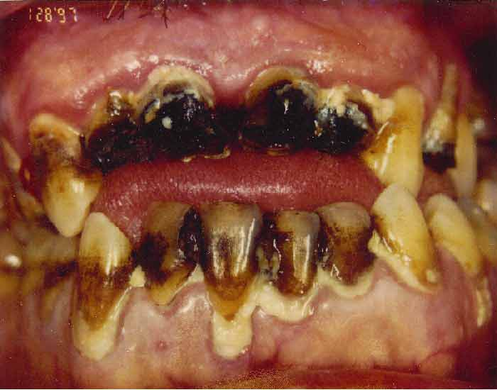 Image 3 – meth mouth photo