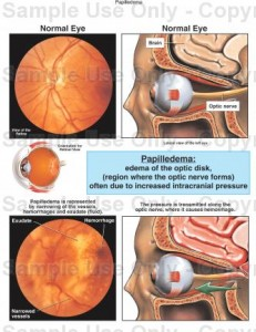 pictures of Papilledema
