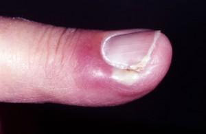 Paronychia Finger Pictures