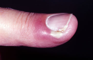 Picture 7 Paronychia Finger Source Skininfection