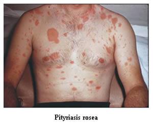 Pityriasis Rosea
