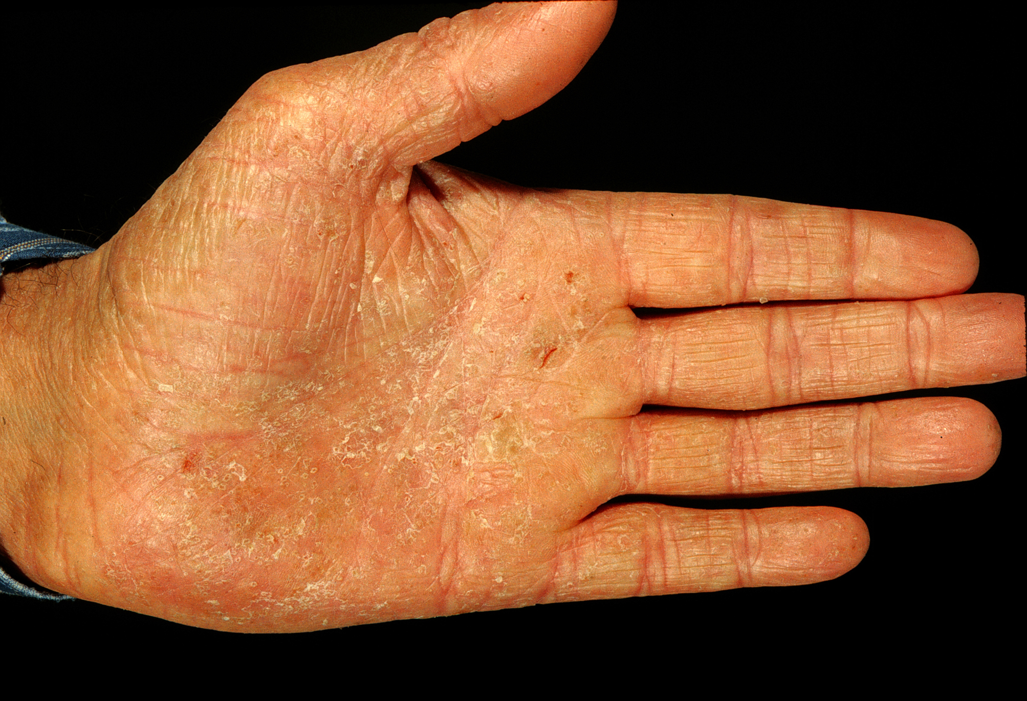 Pompholyx Eczema Natural Cure
