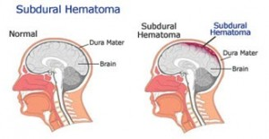 photos of Subdural Hematoma