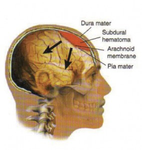 pictures of Subdural Hematoma