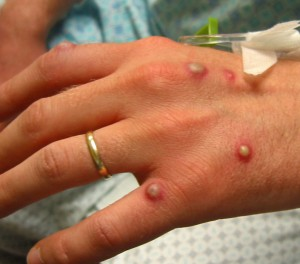 pictures of vesicular rash
