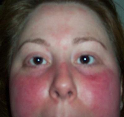 Facial flushing differential diagnosis
