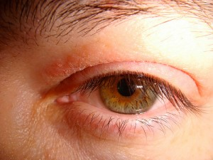 eyelid rash photos