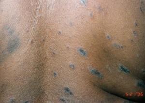 Pityriasis Rosea images
