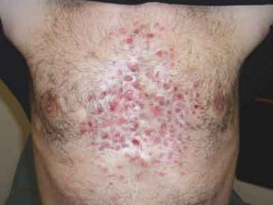 photos of Acne Conglobata