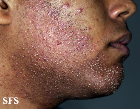 Folliculitis Pictures Types Symptoms Causes And