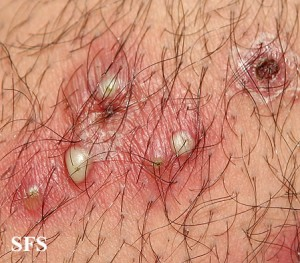 photos of Folliculitis