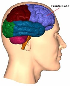 Frontotemporal Dementia pictures
