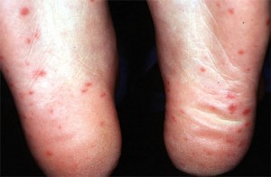 Hand Foot and Mouth Disease Adults pictures