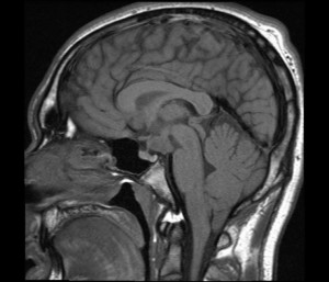 Hypothalamic Hamartoma pictures
