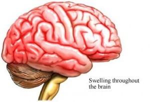 symptom of Rift Valley Fever