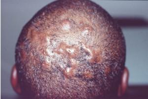 Folliculitis scalp