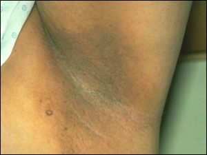 pictures of Acanthosis Nigricans