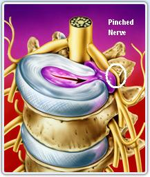 Pinched Nerve Pictures
