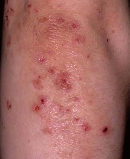 Dermatitis Herpetiformis the 'Gluten Rash'