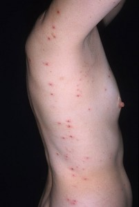 Images of Dermatitis Herpetiformis