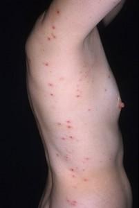 Images of Dermatitis Herpetiformis