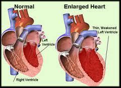 borderline cardiac enlargement