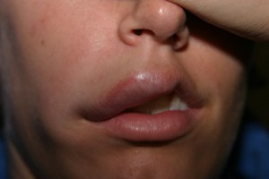 pictures of Angioedema