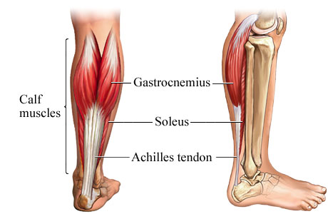 Calf Pain (Muscle) - Causes, Problems, Location, Treatment and ...